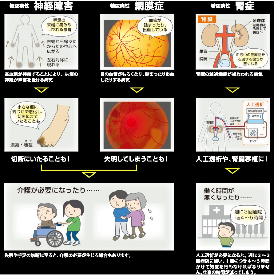 糖尿病の三大合併症
